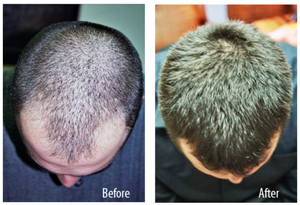 hair loss Tucson